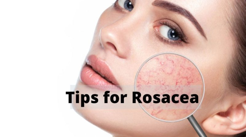 tips for rosacea