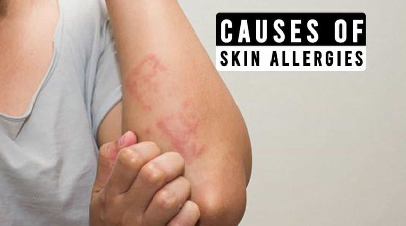 Causes of Skin Allergies