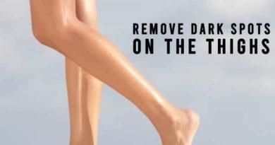 remove dark spots on thighs