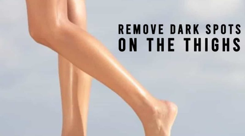 remove dark spots on thighs
