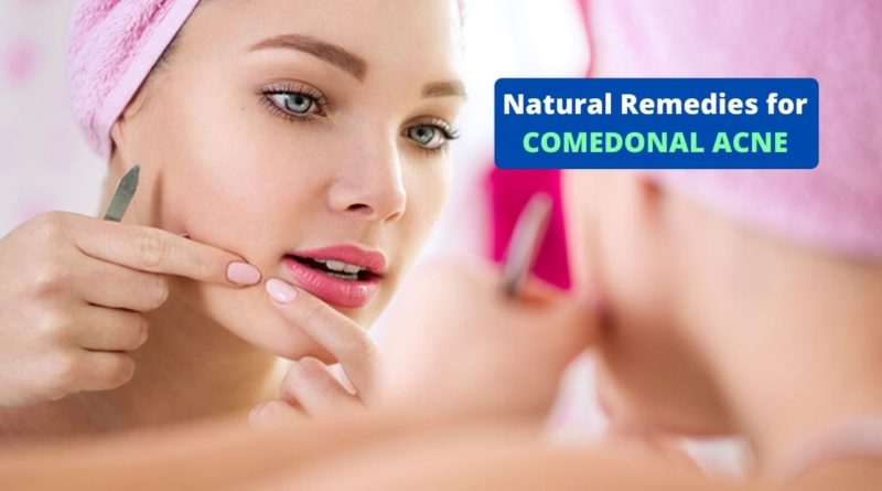 Natural Remedies for Comedonal Acne